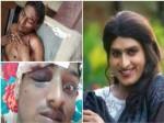 Jabardasth Comedian Vinod Says Reason For Attack