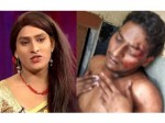 Jabardasth Comedian Vinod Cried Daily Because Of