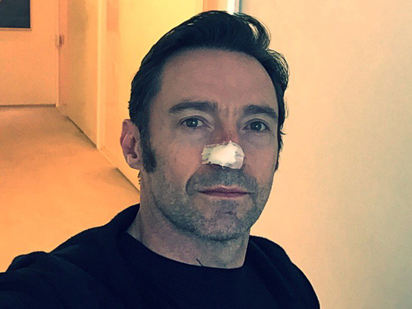 Hugh Jackman Confirms About His Cancer Via Instagram