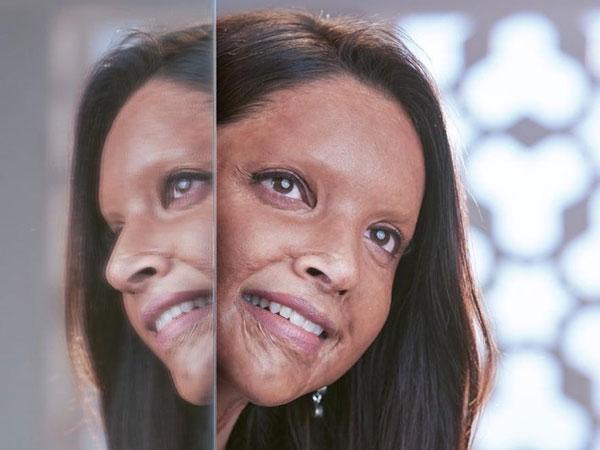 అందవిహీనంగా దీపిక పదుకోన్: 'ఛపాక్' ఫస్ట్ లుక్ షాకింగ్