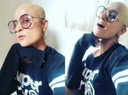 Tahira Kashyap Shared Her Bald Pic